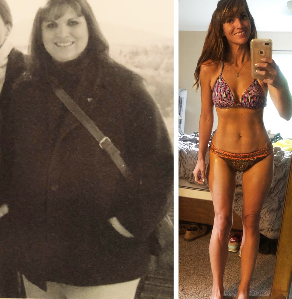 before after weight loss photo of woman