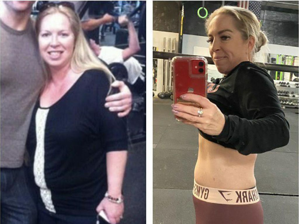 woman in side by side weight loss pics