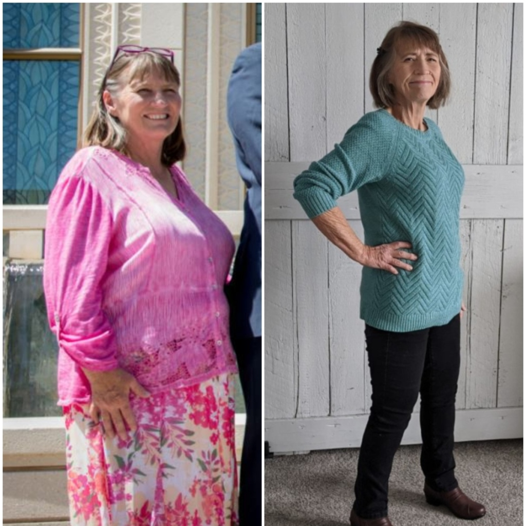 woman before and after weight loss of keto diet success